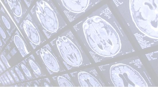 MRIimages